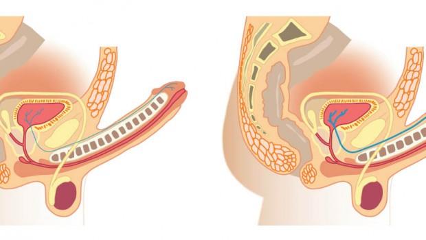 Operacion para crecer el pene