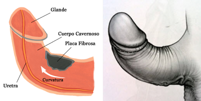 trastorno del pene curvo