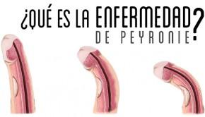 enfermedad de peyronie