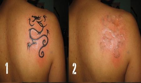 C mo eliminar tatuajes de forma natural t cnicas y for Tattoos and hepatitis