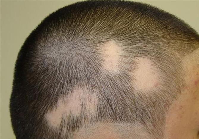 Los aceites naturales los climatizadores para los cabellos