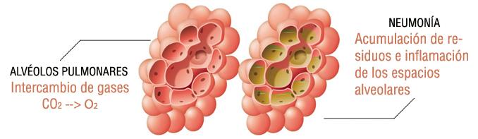 causas de la neumonia