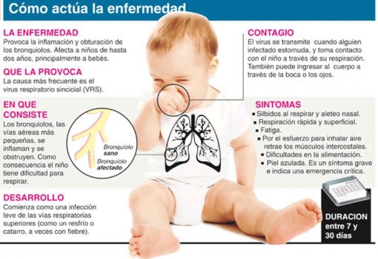 Infografía virus sincicial respiratorio