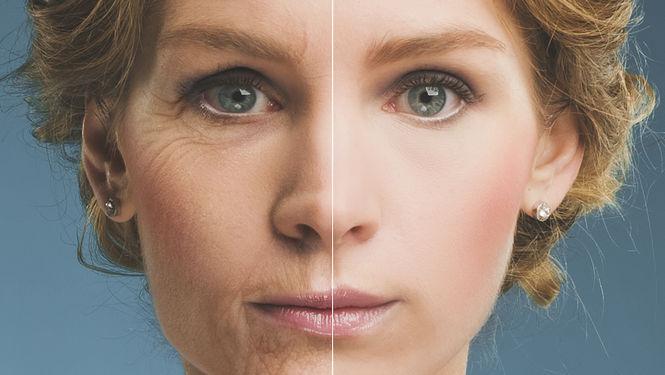 la piel y la glicación