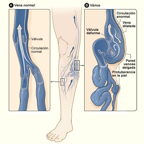 varices-en-las-piernas-funcionamiento